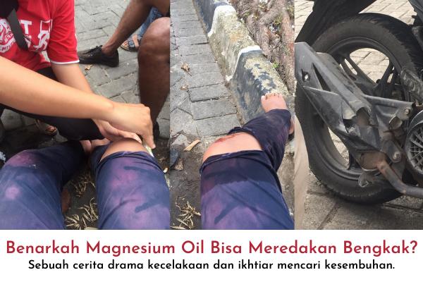 benarkah magnesium oil meredakan bengkak